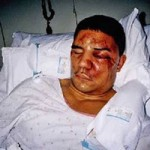 ten worst case of police brutality in history